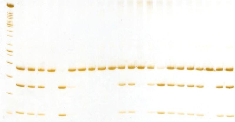 2 poliacrilamida cyp17